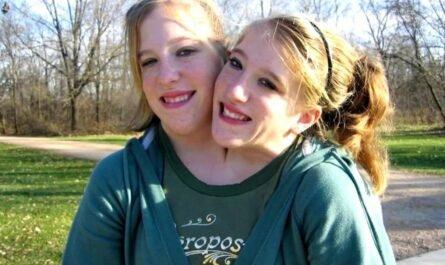 Как сложилась жизнь сиамских близнецов Эбигейл и Бриттани Хенсел, имеющих одно тело на двоих?