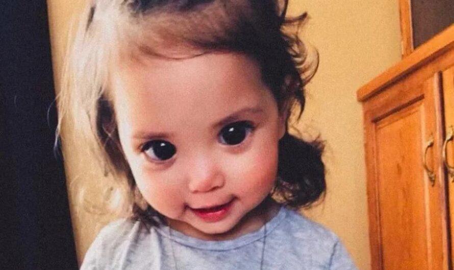 Люди восхищаются большими глазами девочки, но не знают, что у нее редкий синдром