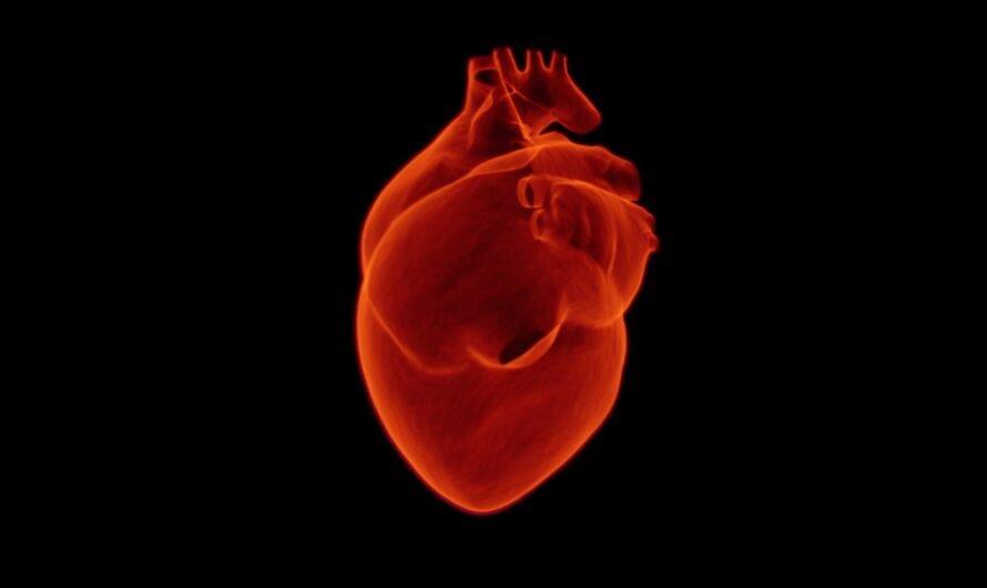 Все, что нужно знать об инфаркте или неожиданные факты о сердечных приступах