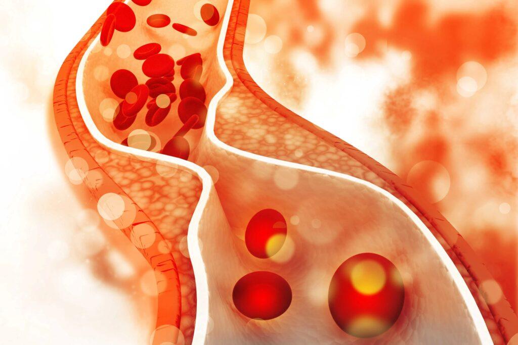 Враг или друг: что нужно знать о холестерине?